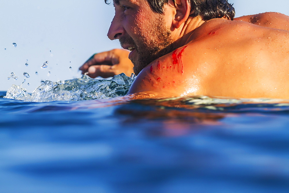 Photograph of surfer in sea with blood on shoulder, Lakey Peak, central Sumbawa, Indonesia