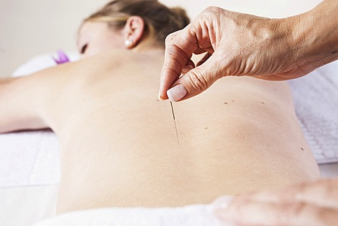 Young woman receiving acupuncture treatment on her back