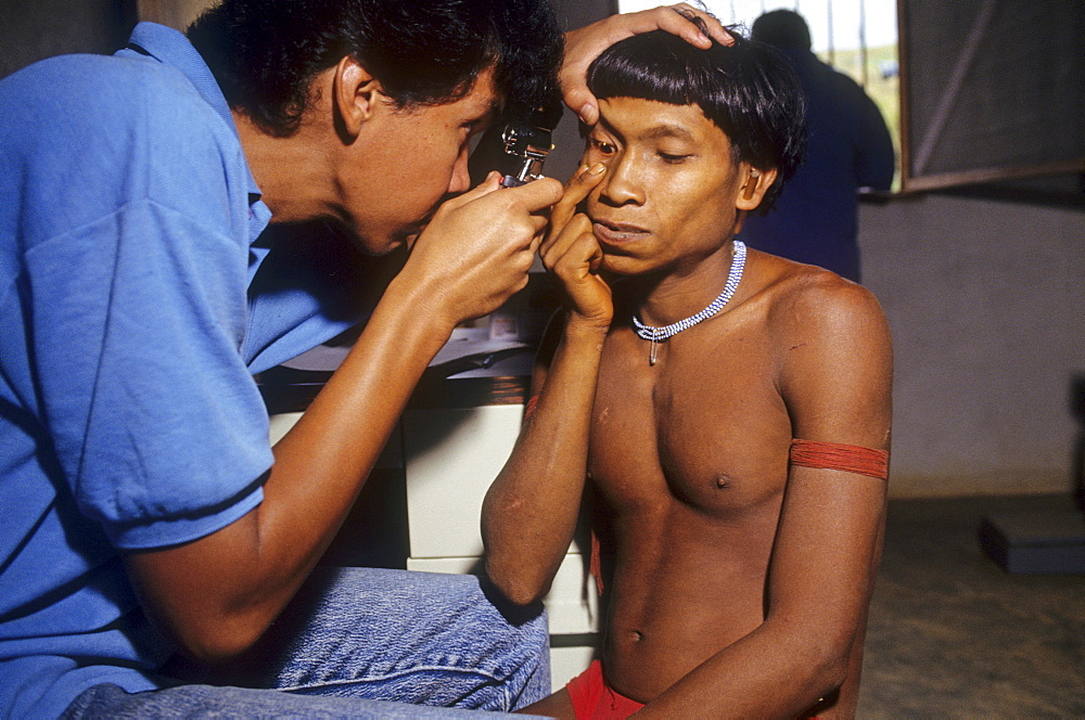 Yanomami amerindians, venezuelan amazonas. Serra parima, niyayobaten village. Yanomami indian being examined for onchocerciasis at caicet field hospital. Treatment is also available here for malaria for which the yanomami have no resistance to. Malaria was probably brough to the region by illegal gold miners. Thousands of yanomami have died of malaria which is threatening the tribe with extinction. Electricity inside the hospital is generated using solar panels
