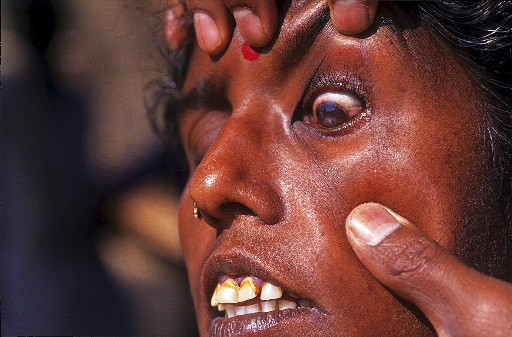 Health, india. Andhra pradesh, rishi valley. Woman with cataract