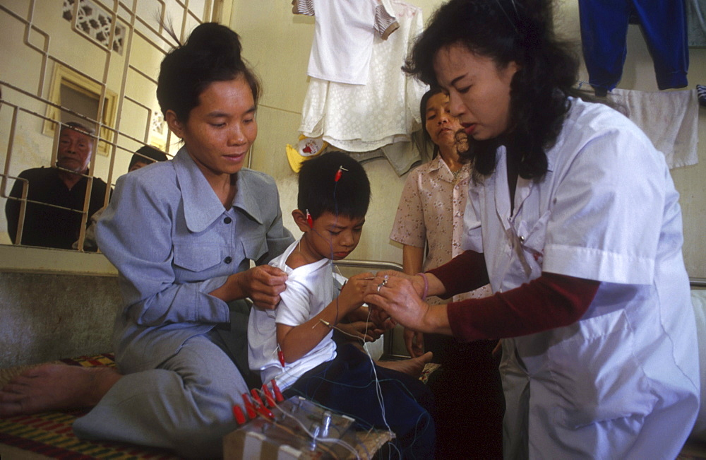 Vietnam - health: boy receiving acupuncture treatment, hanoi