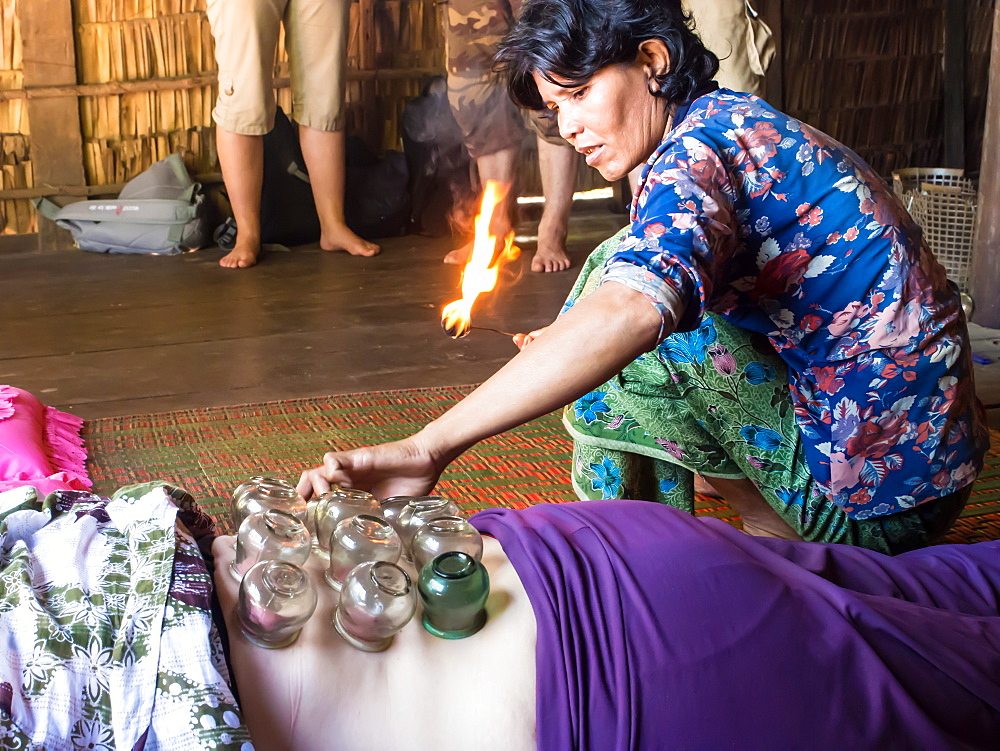 Traditional healing technique of fire cupping, village near Siem Reap, Cambodia, Indochina, Southeast Asia, Asia - 1242-190