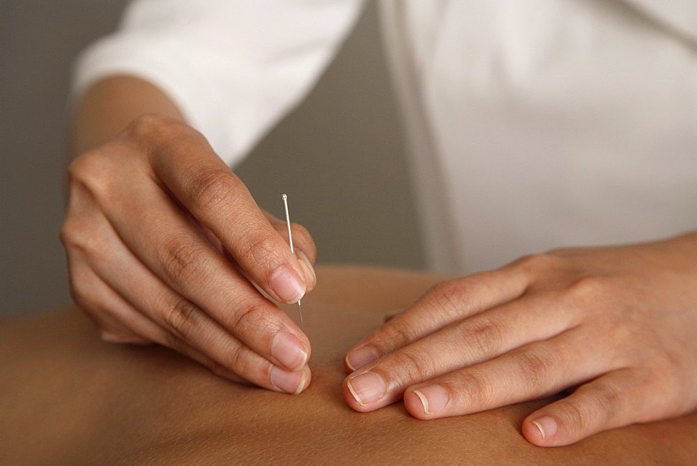 Acupuncture treatment, Chinese Medicine