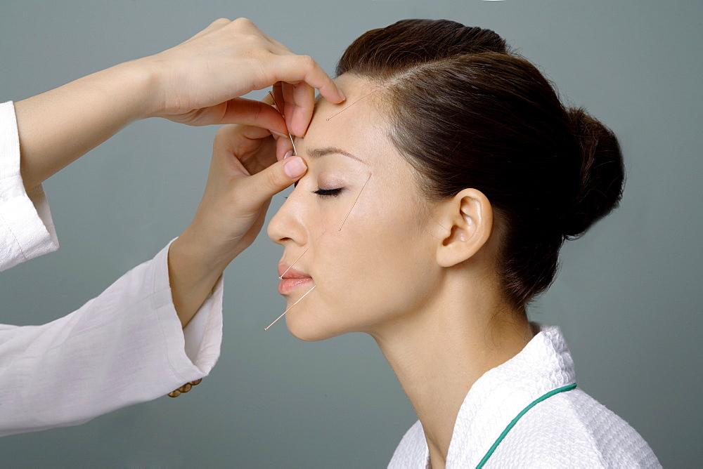 Acupuncture, Chinese Medicine
