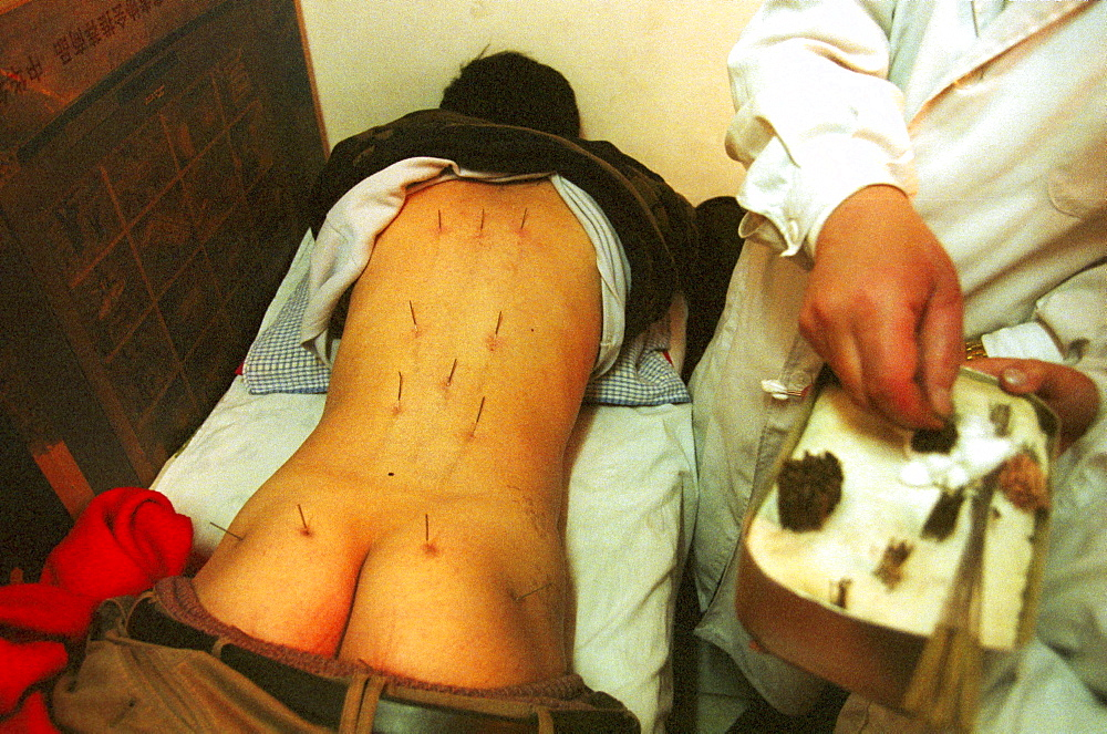 in the private acupuncture clinic of dr. wang in beijing. a patient suffering from acute back pain gets a treatment.