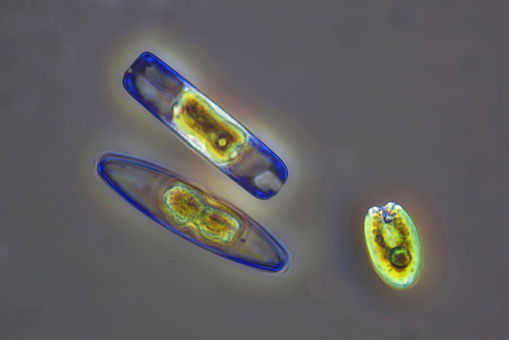 diatoms diatoms phase contrast microscopy