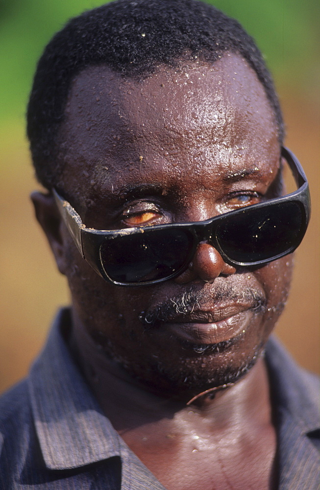 Onchoceriasis, ivory coast. Vicinity odienne. Men blinded by river blindness. This disease has now been brought under control in west africa by whos ocp programme