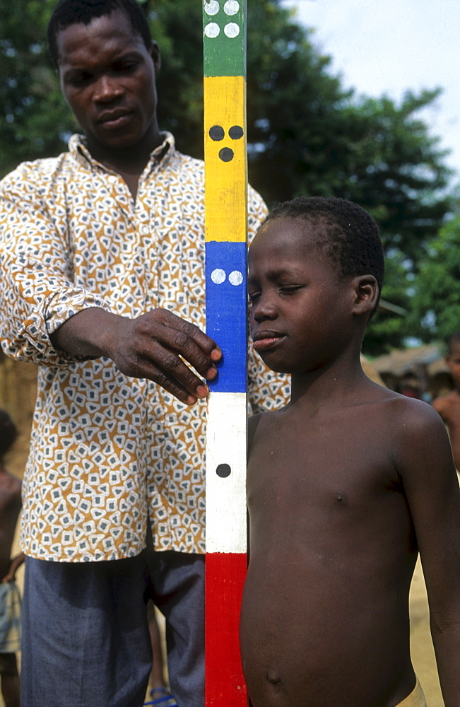 Onchoceriasis, ivory coast. Bouake. Who river blindness prevention - measuring children to determine correct dose for ivermectin tablets. The dots on the pole indicates correct dose