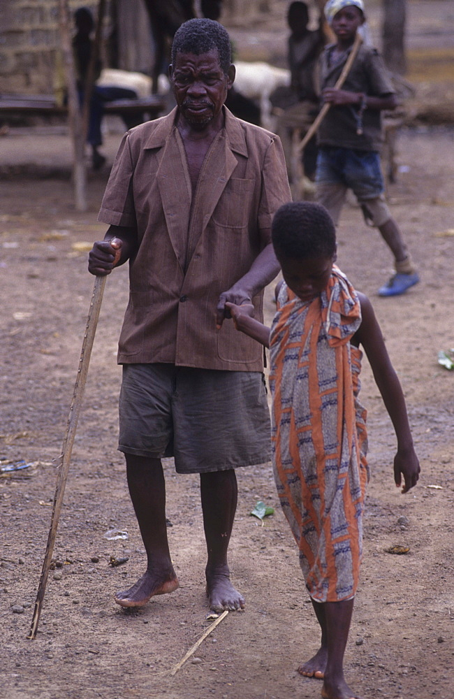 Onchoceriasis, ivory coast. Vicinity odienne. Men blinded by river blindness. This disease has now been brought under control in west africa by whos ocp programme.