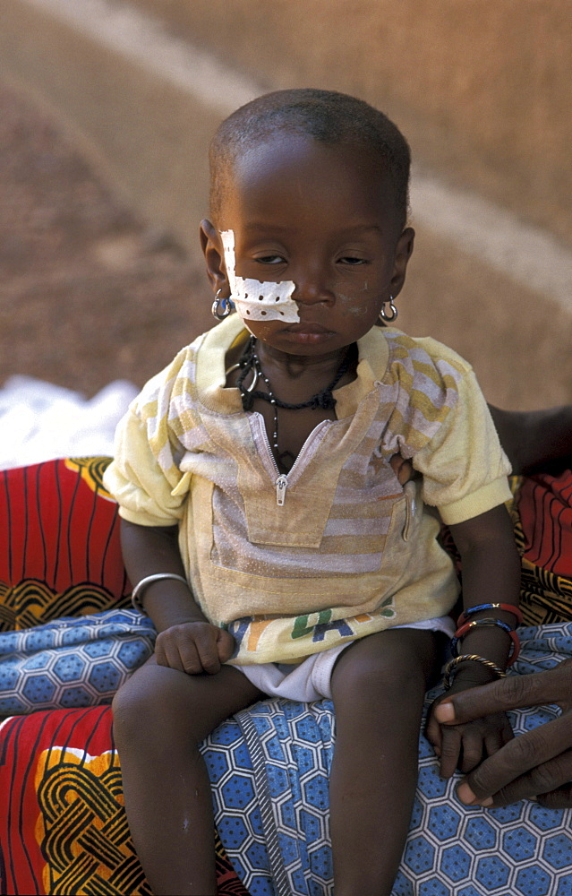 Burkina malnourished child attached nutrition center in ouagadougou