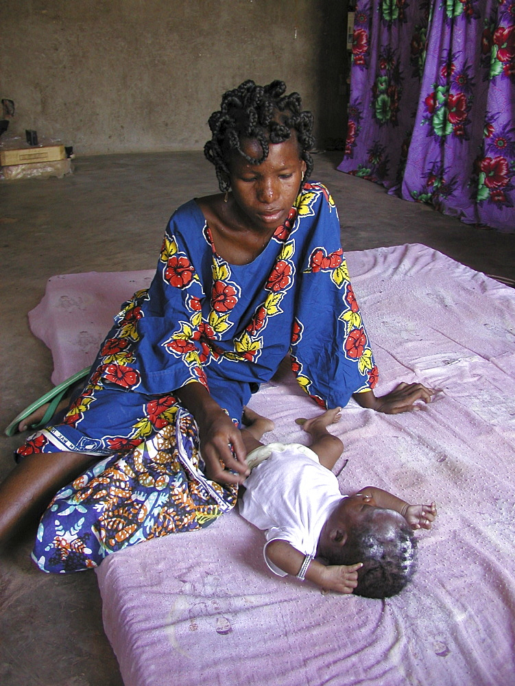 Burkina yameogo yosianne (26), hiv+ mother her ouagadougou