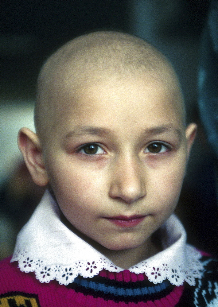Ukraine child cancer in remission childrens hospital - 1194-1698