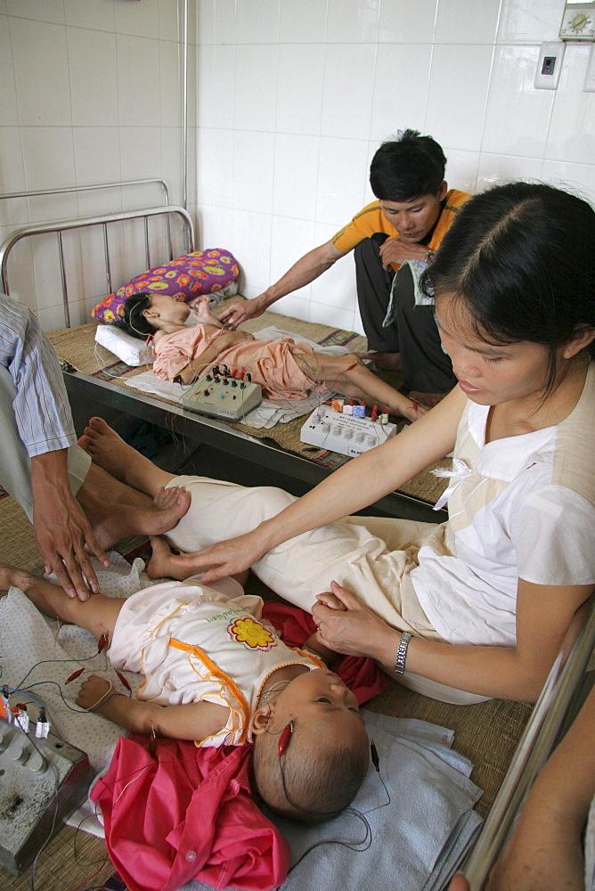 Vietnam child receiving acupuncture treatment at hospital in hanoi