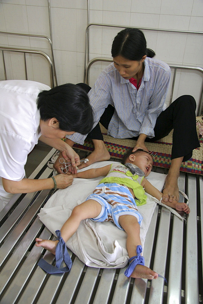 Vietnam child receiving acupuncture treatment at hospital in hanoi