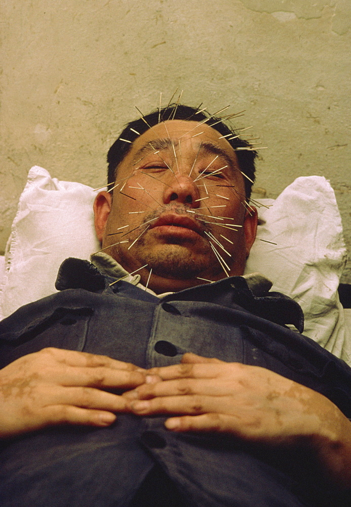 Man with many acupuncture needles in face, Beijing, China, Asia