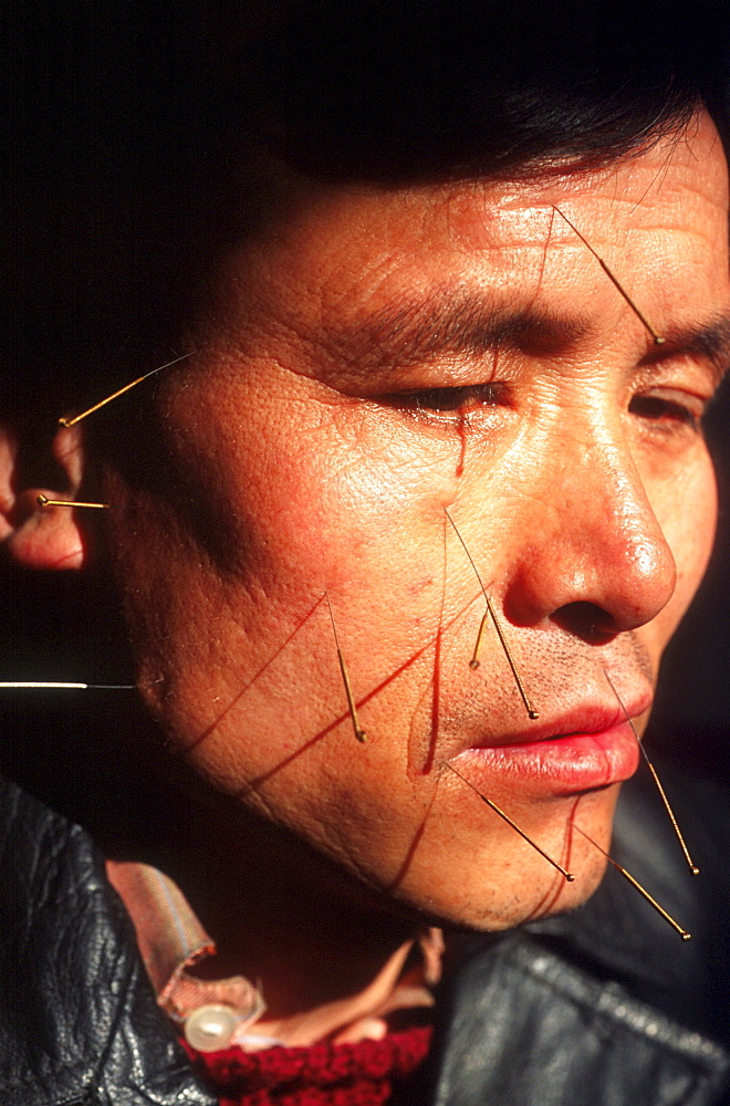 Chinese medicine. A patient in a hospital in Beijing is recieving acupuncture treatment for facial spasms. He comes in daily for one month.
