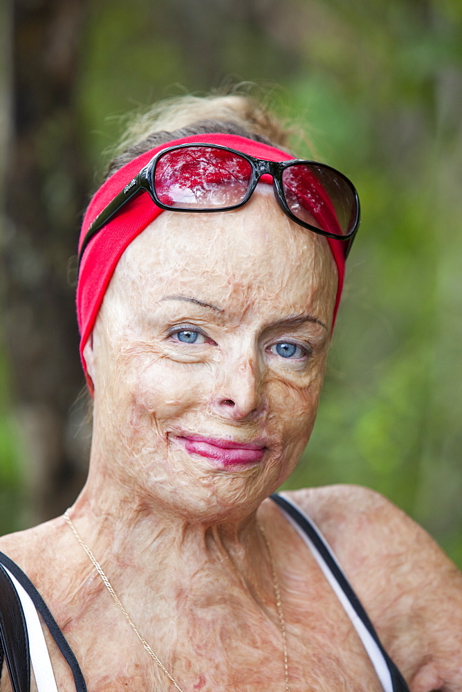 A lady who was horribly burned in a house fire and who now work for the Peter Hughes Burn Foundation providing counselling and support for the victims of bush fires, Australia, Pacific
