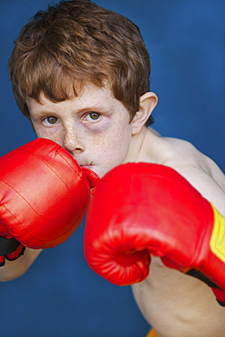 Portrait tough boy with black eye wearing boxing gloves in fighting stance