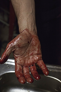Cropped image of man showing blood stained palm