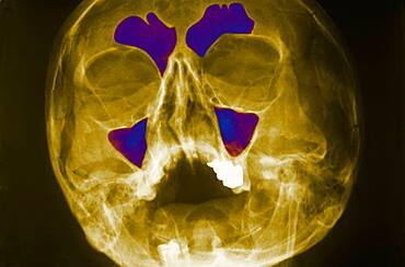 Sinus, x-ray