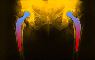Hip prosthesis, x-ray