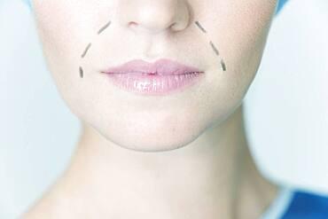 Face plastic surgery