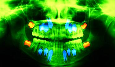 Dental panoramic x-ray. In red, the wisdom teeth ; in blue the permanent teeth that push the baby teeth.