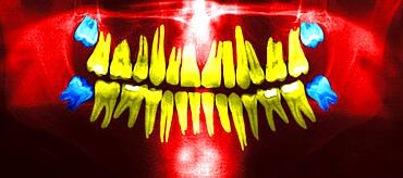 Dental panoramic x-ray. In blue, the wisdom teeth.