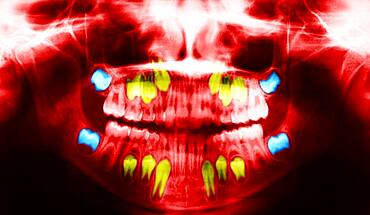 Dental panoramic x-ray. In blue, the wisdom teeth ; in yellow the permanent teeth that push the baby teeth.
