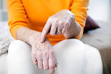 Age spots on senior woman hands.