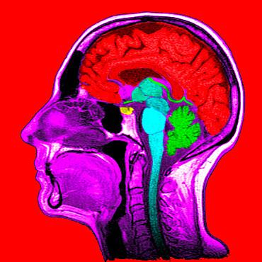 Sagittal section. 1. Brain. 2. Corpus callosum. 3. Septum lucidum. 4. Thalamus. 5. Mamillary body. 6.Mesencephalon. 7. Pons. 8. Medulla oblongata. 9. Spinal cord. 10. Cerbellum. 11. Frontal sinus. 12. Ethmoid cells. 13. Concha. 14. Sphenoida