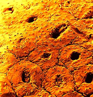 Surface of the colon mucosa. SEM x 200.