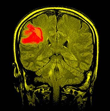 Nmr cerebral lymphoma