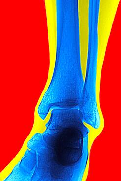 Ankle, x-ray - 1348-2230
