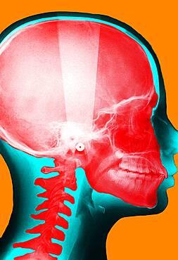 X-ray of the skull.