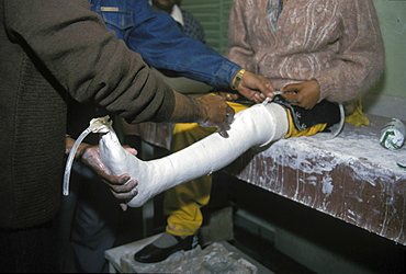 Healthcare, india. Jaipur. Local technicians fitting an artificial jaipur foot