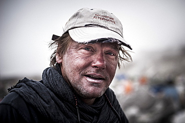 A climber at Everest Base Camp the day after he has attempted climbing Everest showing signs of exposure at high altitude, Khumbu Region, Nepal, Asia