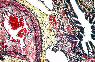 Blood Vessels in Lungs, LM