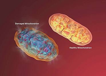 Alzheimer's Disease, Mitochondrial Dysfunction
