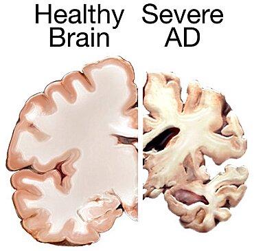 Alzheimer's Disease, Healthy vs. Severe