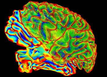 Human Brain, Surface Mapping