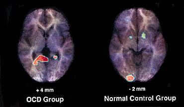 PET Scan, Normal and OCD Brain