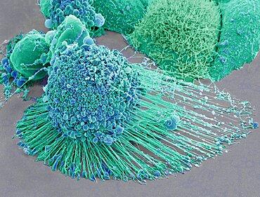 Apoptotic HeLa Cell, SEM