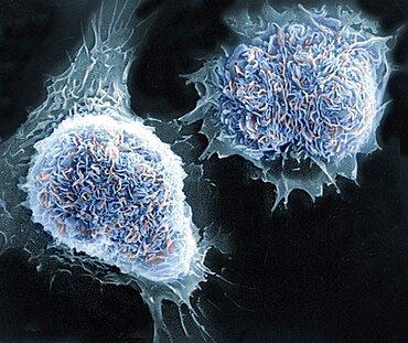 Cultured Cells, SEM