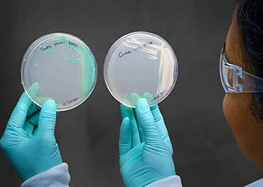 Candida auris Cultures in Laboratory