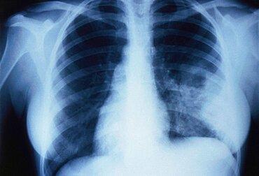 Non-encapsulated Cryptococcosis, X-ray
