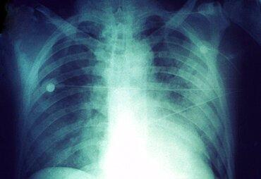 Human Plague, Chest X-ray