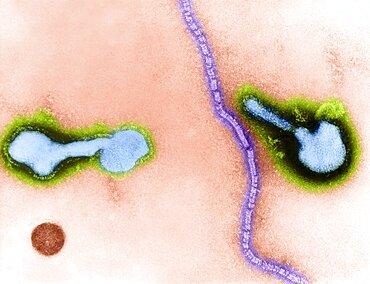 Parainfluenza Virus, TEM