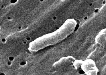Vibrio cholerae Bacteria, SEM