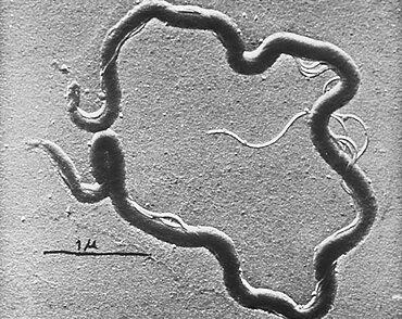 STD, Treponema pallidum, TEM